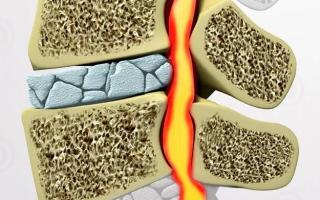 Лечение деформирующего спондилоартроза поясничного отдела позвоночника