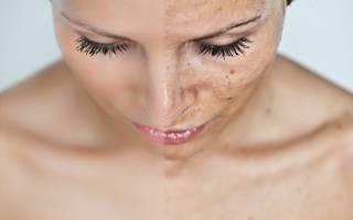 Что такое актинический кератоз: симптомы и лечение