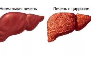 Цирроз печени — причины