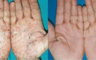 Причины, симптомы и лечение псориаза