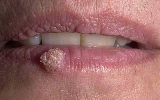 Как вылечить бородавки в полости рта