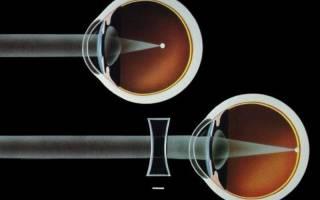 Как вылечить дальнозоркость — описание от магазина оптики в Воронеже