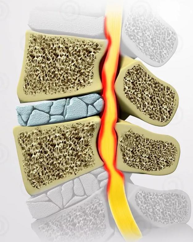 Деформирующий спондилоартроз поясничного отдела позвоночника - лечение