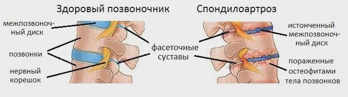 Спондилоартроз поясничного отдела позвоночника