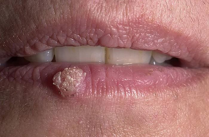 бородавка на губе 2