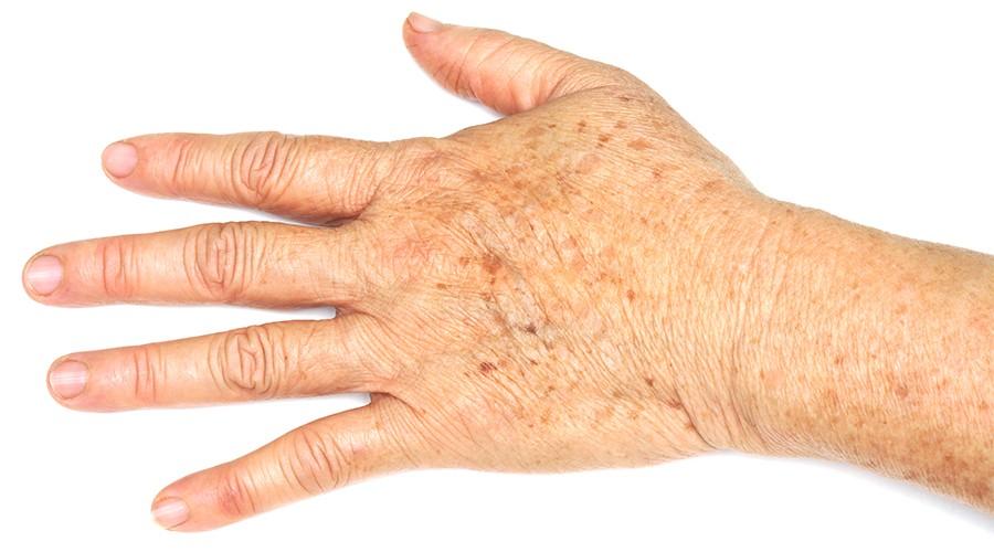 актинический кератоз на руке