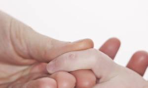 Причины появления бородавок у ребенка
