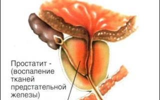 Методы и особенности лечения простатита