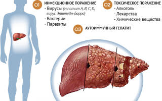 Причины, которые вызывают заболевание печени