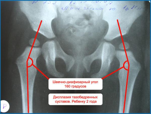 displaziya-tazobedrennogo-sustava-u-novorozhdennyh-i-grudnichkov